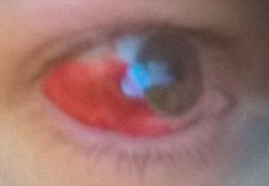 ouch my eye
